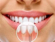Акции медицинского центра в Бирюлево на импланты В нашей стоматологической клинике «Саф-Мед» проходит Супер Акция! Супер стоимость!   Имплантация зубо, Москва - Медицинские услуги